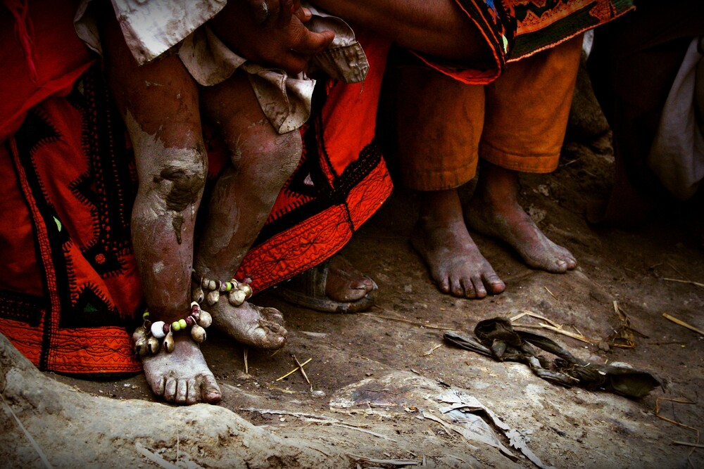 The tiny feet experience big harsh - fotokunst von Rada Akbar